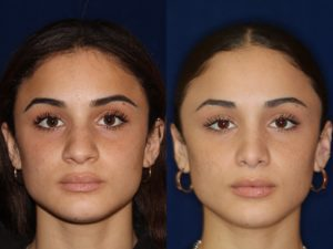 African American Rhinoplasty and African American Nose Job