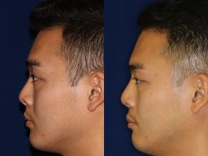 Asian Rhinoplasty and Asian Nose Job