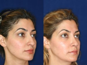 Middle Eastern Rhinoplasty and Middle Eastern Nose Job