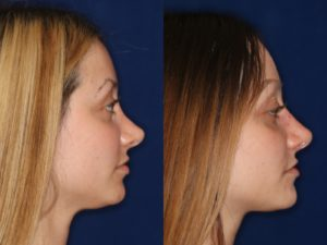 revision non-surgical rhinoplasty